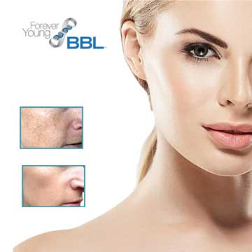 Antiaging teknolojisi BBL Forever Young