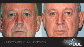 Antiaging Technology BBL Forever Young Before and After