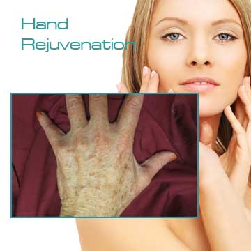 Hand Rejuvenation Skin Rejuvenation and Skin Care Applications and Skin Renewal Detail Information
