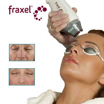Fraxel Fractional Laser Applications Detail Information