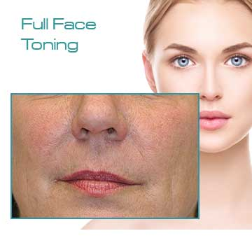 Antiaging Full Face Toning with Q-Switched Nd:Yag Laser