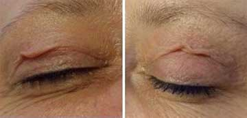 Antiaging Technology Plexr Skin Rejuvenation, Spot Treatment and Wrinkle Treatment