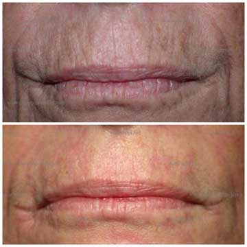 Antiaging Technology Plexr Before and After Skin Rejuvenation, Spot Treatment and Wrinkle Treatment