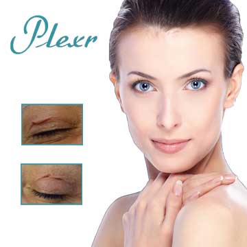 Plexr Skin Rejuvenation and Wrinkles Detail Information
