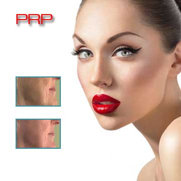 Antiaging Skin Rejuvenation with PRP Detail Information