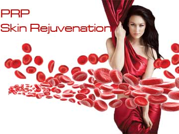 Antiaging Technology PRP (Stem Cell) Skin Rejuvenation