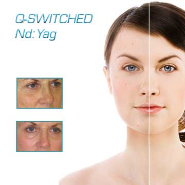 Q-Switched ND Yag Laser Q-Switched Laser Applications Antiaging Detail Information