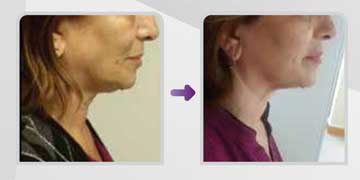 Antiaging Technology Scarlet S non-operative skin rejuvenation, Skin Rejuvenation and Wrinkles Before and After