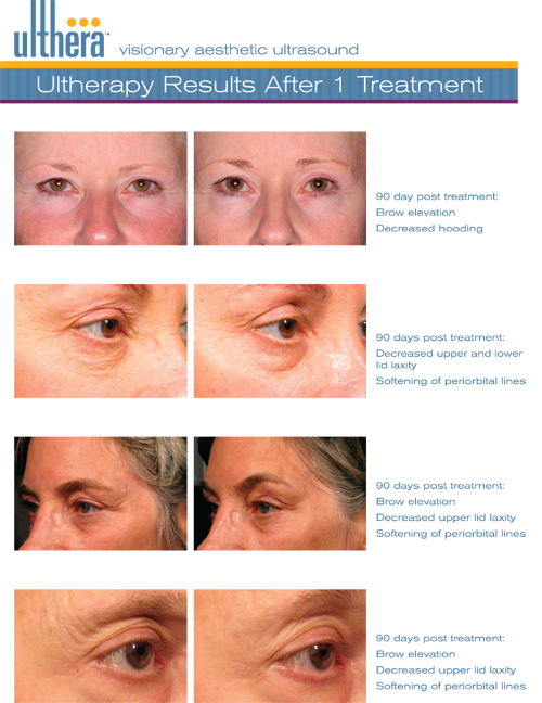 Antiaging Technology Ultherapy Face Lift in a Single Session without Operation