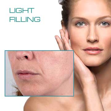 Wrinkle Treatmensts with Anti-aging Filling Applications Light Filling Redensity I Detail Information