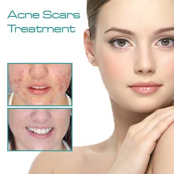 Skin treatment acne scars red acne treatment with fraxel laser