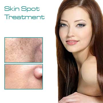 Skin spot treatment and Skin treatment with fraxel laser.