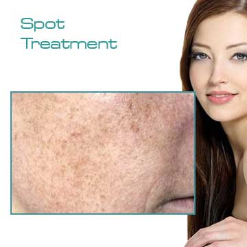 Spot Treatment Skin Rejuvenation and Skin Care Applications and Skin Renewal Detail Information