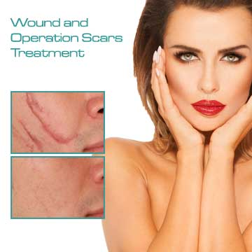 Skin treatment Wound and Operation Scar Treatment with fraxel laser