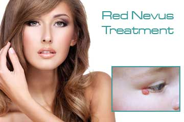 Vascular Treatments Red Nevus Treatment Detail Information