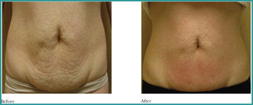 Local Slimming - Body Shaping - Weight Loss Cellulitis BTL Exilis Elite
