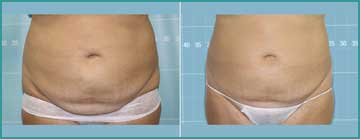 Local Slimming - Body Shaping - Weight Loss Cellulitis Cold Lypolysis