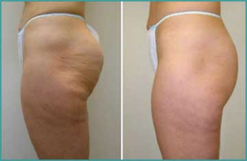 Local Slimming-Body Shaping-Weight Loss Cellulitis Velashape
