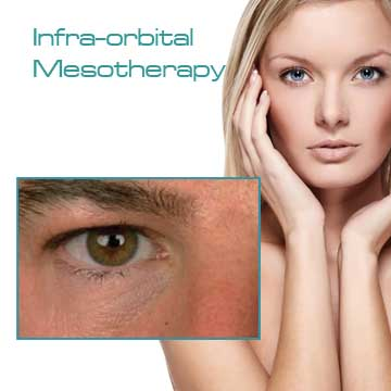 Antiaging Skin Renewal Infra-orbital Mesotherapy Light Eyes Ultra Detail Information