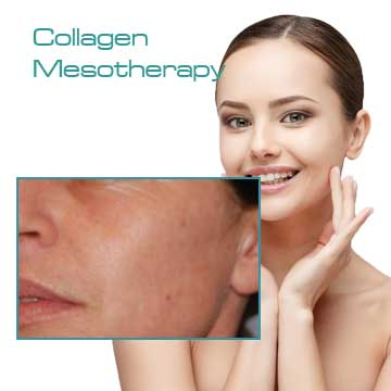 Antiaging Skin Renewal Collagen Mesotherapy LinErase Detail Information