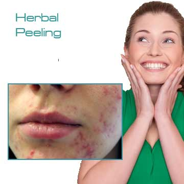 Peeling Applications for Skin Rejuvenation, Skin Renewal and Skin Care Green Peel Herbal Peeling Detail Information