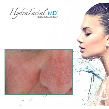 Skin Renewal Hydrafacial MD Detail Information