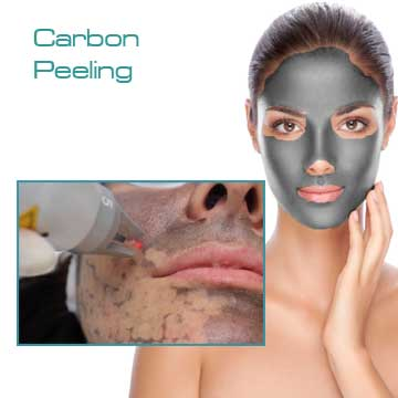 Q-Switched Nd:Yag Laser Carbon Peeling Detail Information