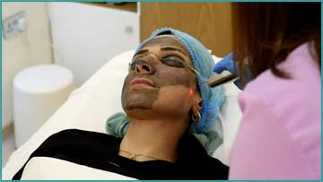 Skin Renewal and Skin Care Q-Switched Nd:Yag Laser Carbon Peeling Detail Information