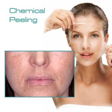 Skin Renewal Chemical Peeling TCA Peel Detail Information